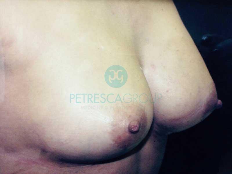 Intervento Mastoplastica Riduttiva Gigantomastia (post)