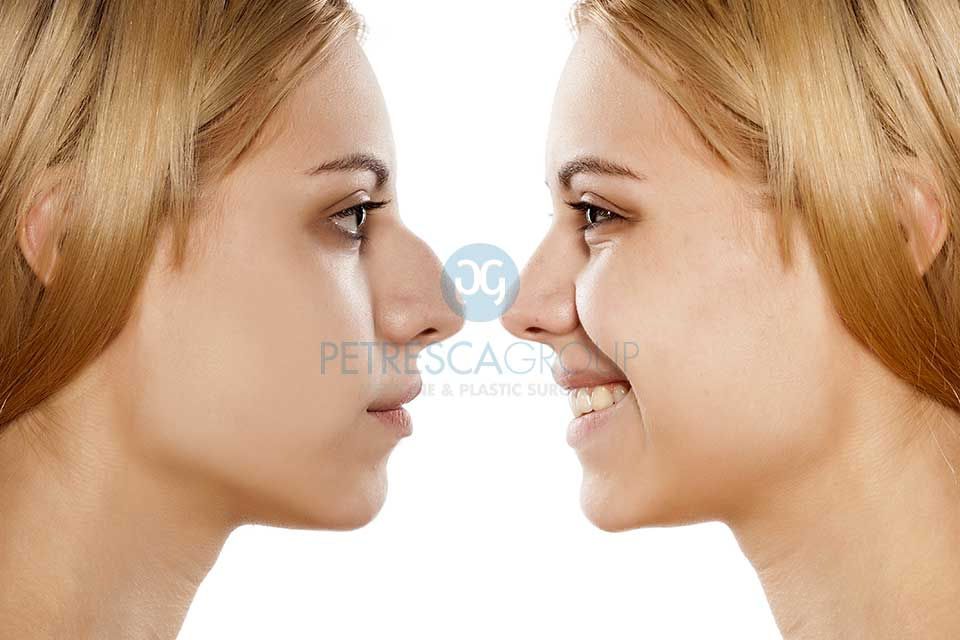 Intervento Rinoplastica Prima e Dopo
